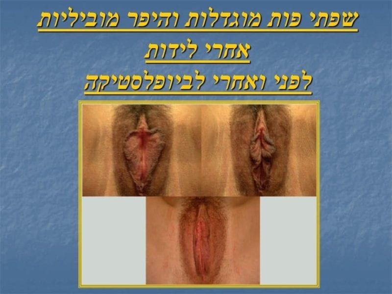 מצגת כירורגיה פלסטית של הנרתיק והפות (26)
