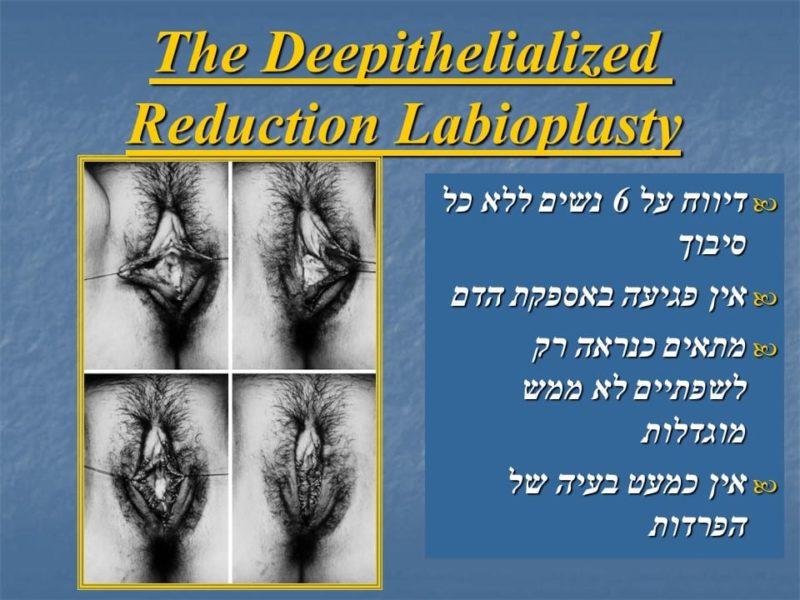 מצגת כירורגיה פלסטית של הנרתיק והפות (34)