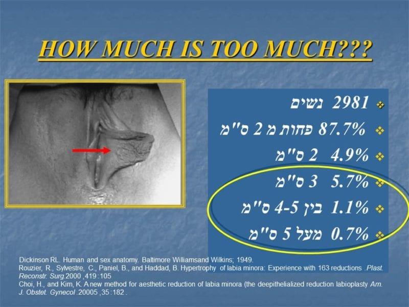 מצגת כירורגיה פלסטית של הנרתיק והפות (4)