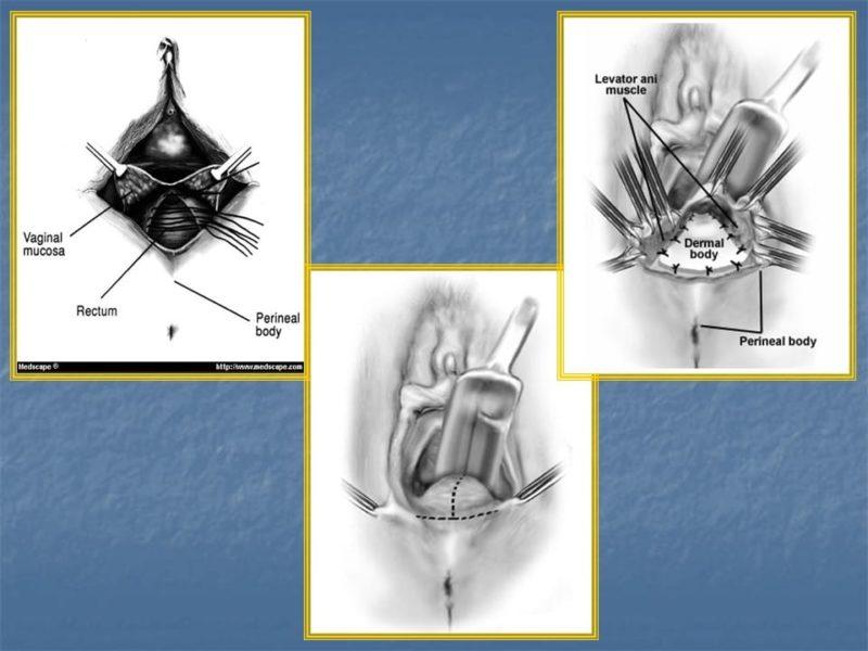 מצגת כירורגיה פלסטית של הנרתיק והפות (41)