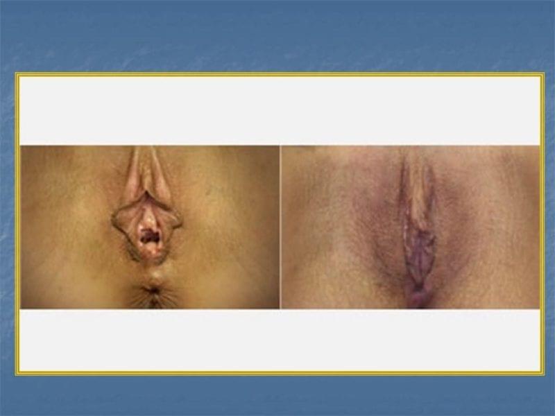 מצגת כירורגיה פלסטית של הנרתיק והפות (43)