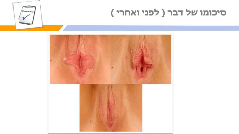 מצגת תיקון שפתי הפות (22)