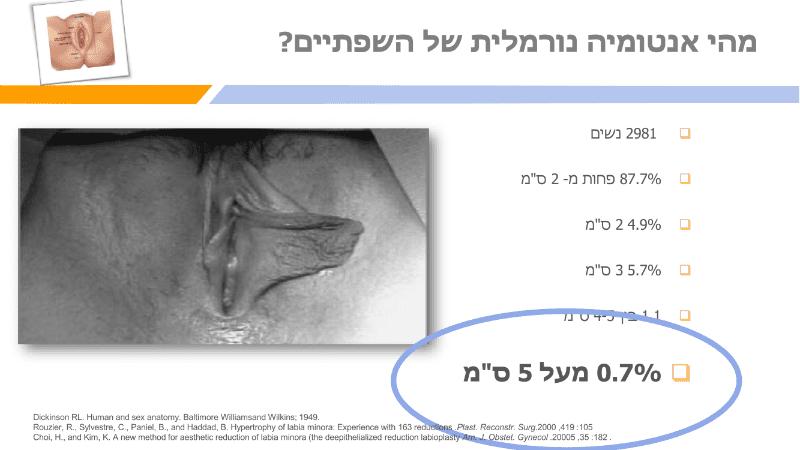 מצגת תיקון שפתי הפות (8)